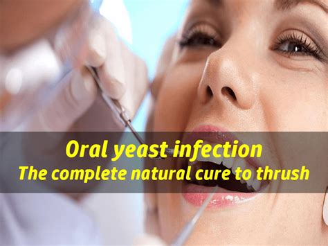 Detox Yellow Tongue by Yeast Infection In The Treatment To
