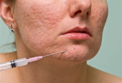 can dermal fillers remove acne scars san diego cosmetic