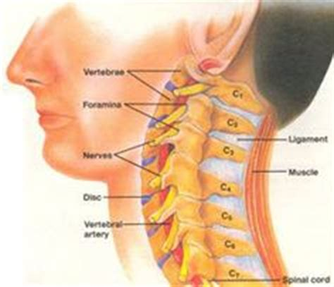 severe neck pain after c section foraminal stenosis is a narrowing of openings in the spine