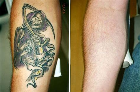 celebrity tattoo removal before after tattoos removed