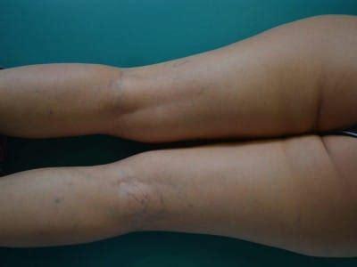 rottura vasi capillari capillari rotti nelle gambe cura della pelle