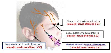 dolor de cuero cabelludo bloqueos para el cuero cabelludo dolopedia
