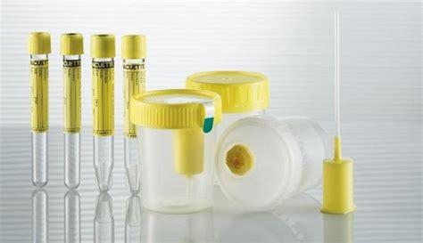 Alat Tes Protein Urin urinalisis dan pemeriksaan laboratorium penyakit saluran