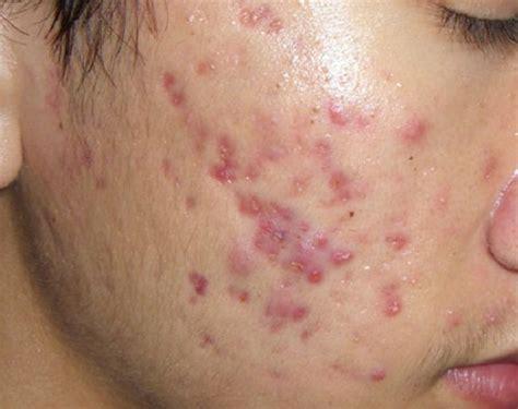 human mun pictures 5 c 225 ch trị sẹo đỏ sau mụn tr 234 n mặt hiệu quả nhanh nhất