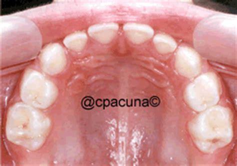 imagenes dientes temporales erupcion dental dientes temporales
