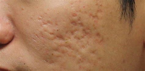 Pimple Dr Bpom For Scar Free Acne Care Berkualitas image gallery pimple acne