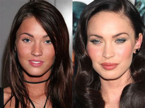 celebrity plastic surgery blog celeb surgery pics celebrities who actually improved with plastic surgery