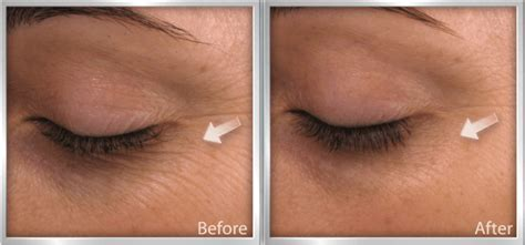 fine lines how to get rid of fine lines before and after they appear