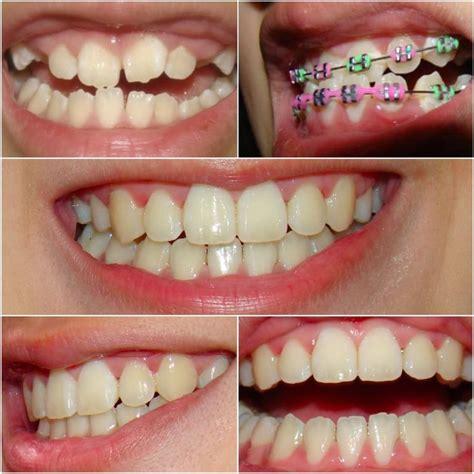 comfort dental com autoopizioni binarie comfort dental braces zylorlybest s