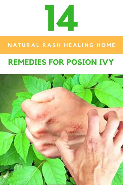 14 rash healing home remedies for poison