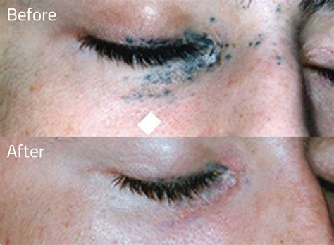 saline tattoo removal before and after erase removal getting a second chance with laser