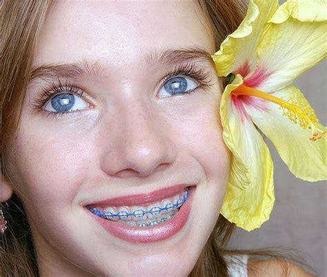 braces colors for teeth purple braces color colors braces braces