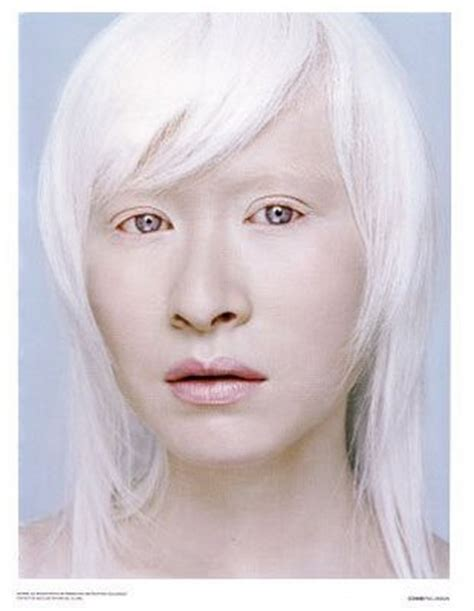 what color do albinos eli5 why do some animals pink skin tones