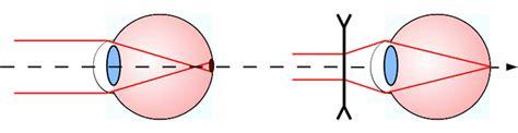 correction myopie lentille les d 233 fauts de vision 188   instru oeil myope