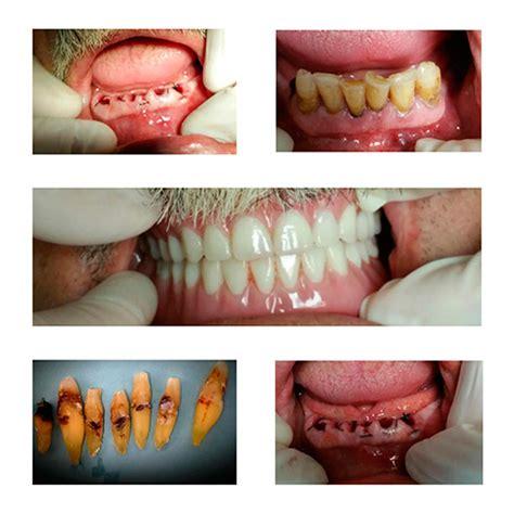 dental cases smile gallery dentist