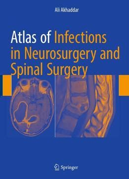 pocket atlas of spine surgery books atlas of infections in neurosurgery and spinal surgery