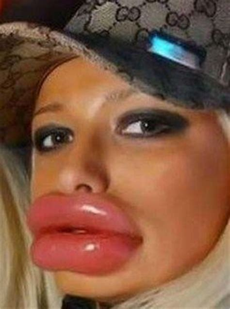 santos search and google on pinterest worst botox lips google search santos pinterest
