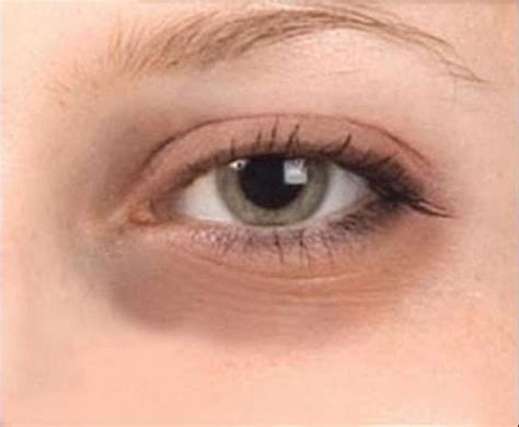 black under eye homemade remedies for dark circles