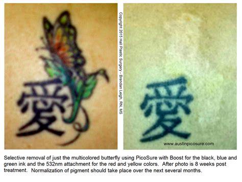 butterfly tattoo removal picosure tattoo removal before after photos