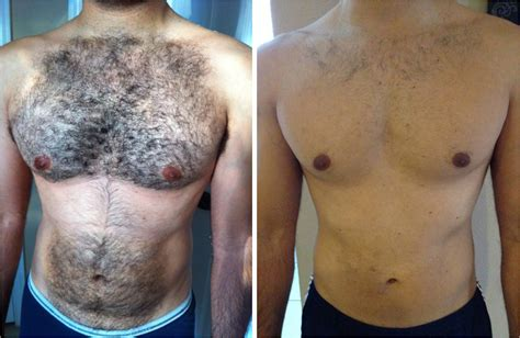 trend for men body hair removal holmeluna0 s blog