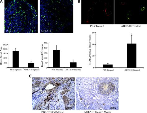 chemical induction of ovarian epithelial carcinoma in mice abt 510 induces tumor cell apoptosis and inhibits ovarian tumor growth in an orthotopic