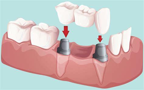 dental works lincoln park mi dental bridges bloink dental