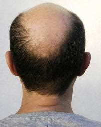 Hair Loss Product Doesn?t Work: Balding Man Sues