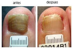 imagenes uñas con hongos imagenes hongos pies podolog 237 a al d 237 a