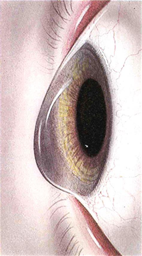 oculista pavia come curare le distrofie corneali oculista carlo