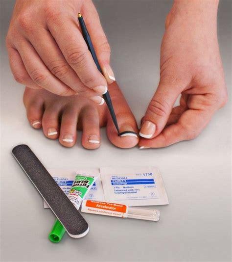 treating an infected ingrown toenail infobarrel 25 best ideas about ingrown toenail treatment on