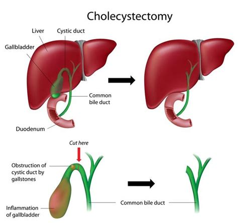 Liver Detox Years After Gallbladder Removal by Cholecystectomy
