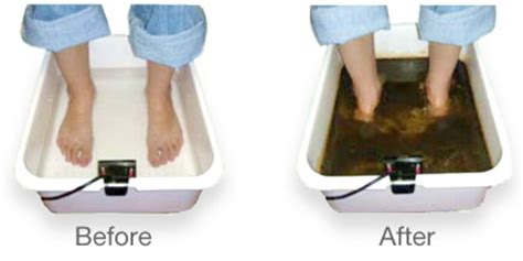 Foot Detox Houston Tx by The Fort Sam Spa Ionic Detoxification