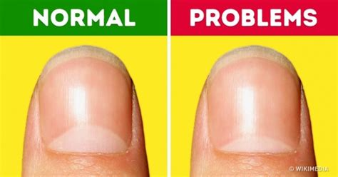 do people run there fingers through there pubic hairs 13 health problems the moons on your nails warn you about