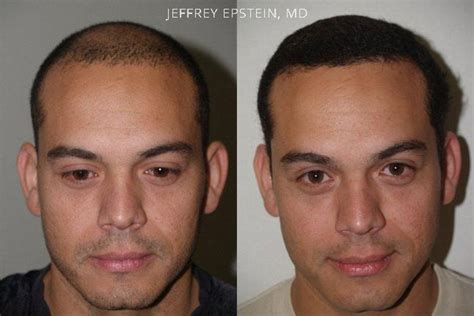 hairline restoration for men hair transplants for men before and after photos hair