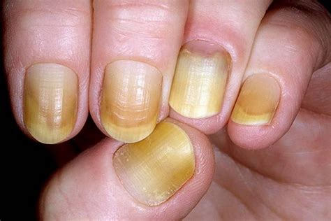 Slowly Transition Your Black Nails Into by 12 Changes In Your Fingernails That Could Signal Other