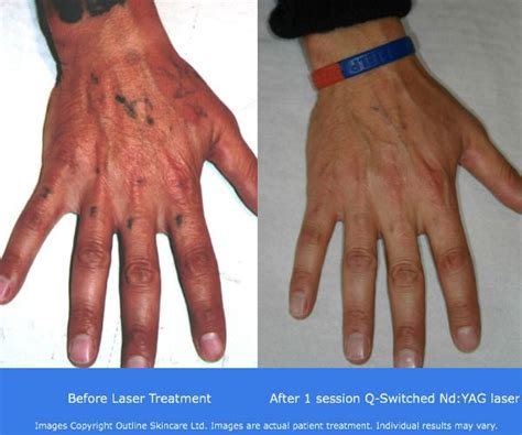 tattoo removal procedures 17 best images about removal before and after on