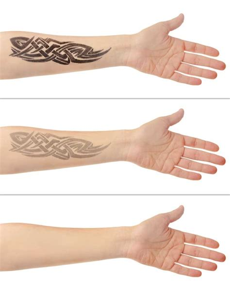 3 step tattoo removal the laser beautique nuevo tratamiento ir nd yag carb 243 n para manchas y