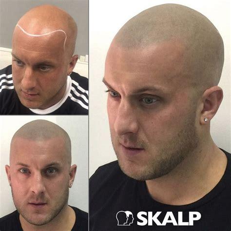 male pattern baldness tattoo 100 best skalp post hairloss treatment photos images on