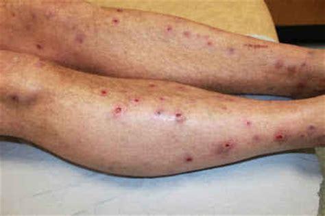 Diskon Jarum Pentul Besar obat untuk penyakit prurigo