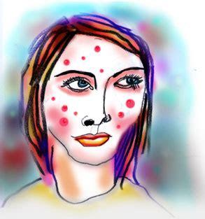 accutane mood swings the zitty face of depression salon com