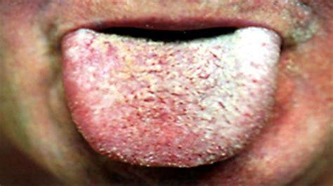 pale tongue white tongue and tubezzz photos