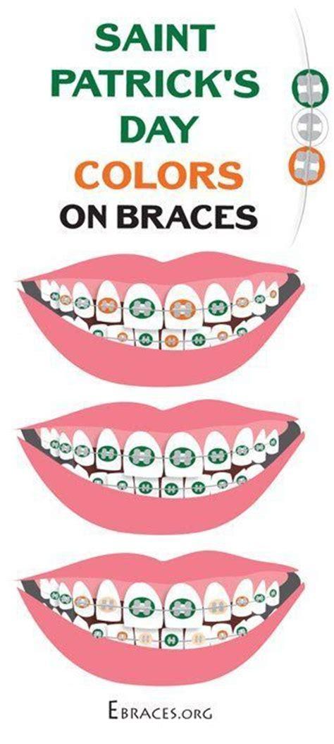 braces color combinations best 25 braces colors ideas on nail color