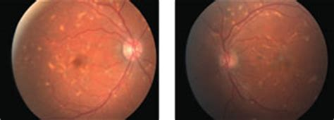 pattern dystrophy eye disease pattern recognition how to identify and confirm