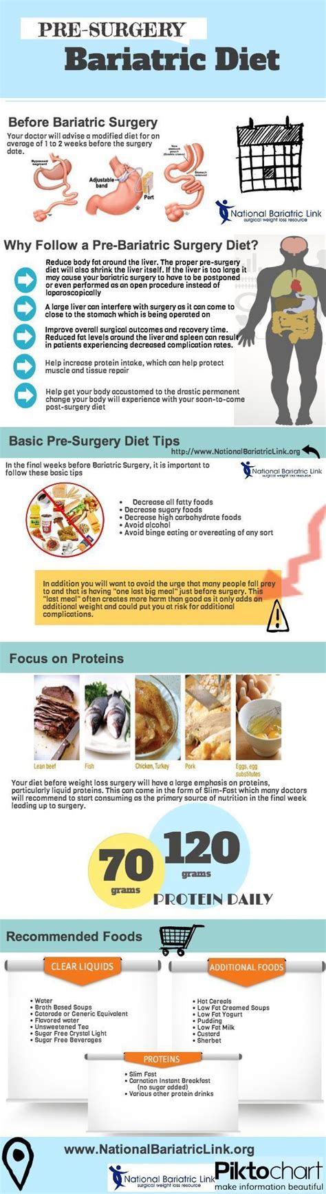 Diet Exercise Or Surgery by 17 Best Images About Gastric Sleeve Surgery On
