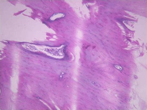 section cutting in histopathology histoloblog it s artifactual