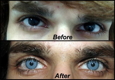 surgical eye color change doctor uses special surgical procedure to permanently