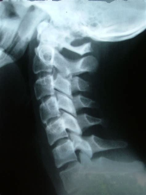 printable x rays can arthritis in your neck be prevented plymouth nucca