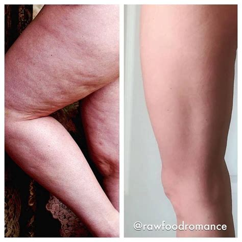 best cellulite removal 842 best foodist before and after images on