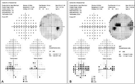 psd pattern standard deviation humphrey visual field testing of both eyes superior nasal