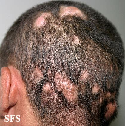 Can Blisters In And Hair Loss Be From Detox by Tinea Capitis Scalp Ringworm Hair Fungal Infection